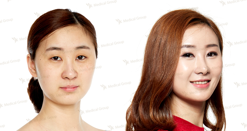Double eyelid surgery, Nose Surgery, Fat grafting